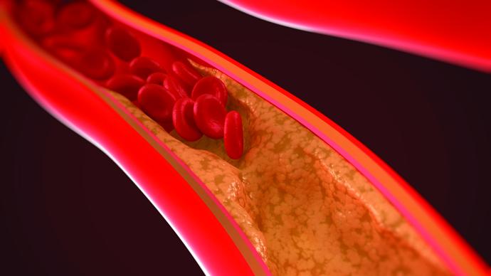pic_ckd_vascular_calcification